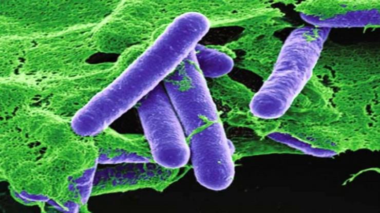 clostridium-botulinum προκαλεί τροφιμογενή αλλαντίαση